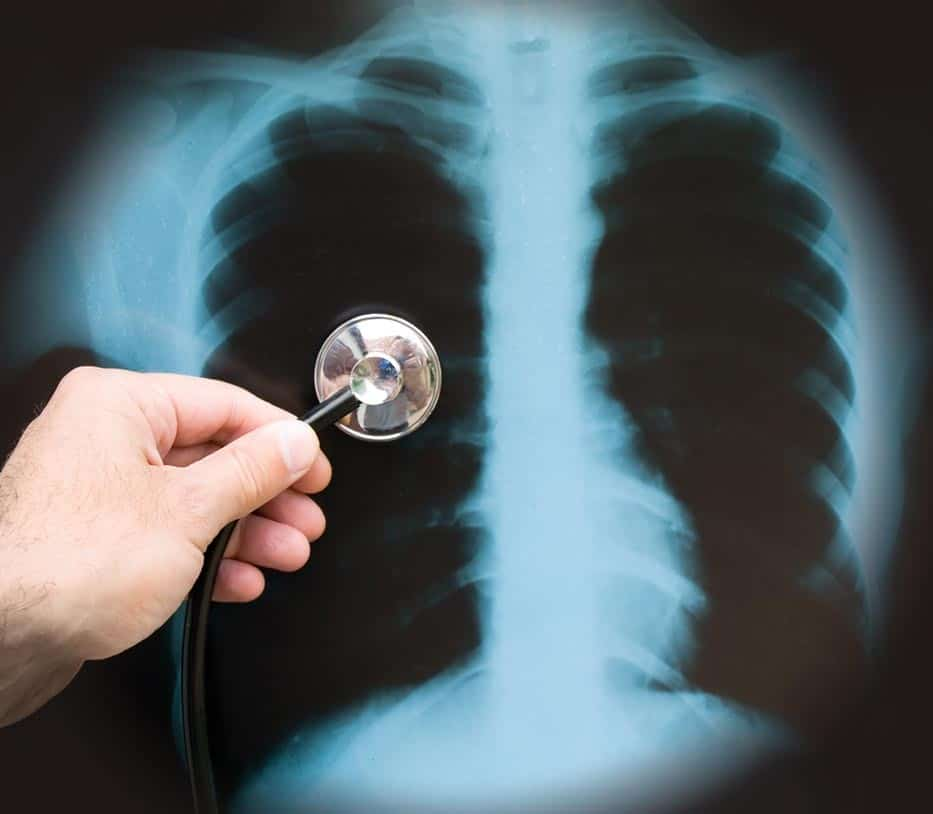 Два раза в год флюорография проводится при высоком риске инфицирования туберкулезом и/или вероятности его распространения