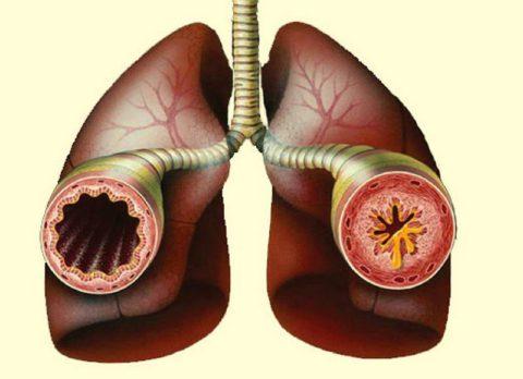 На фото слева показана проходимость здорового и суженного бронха