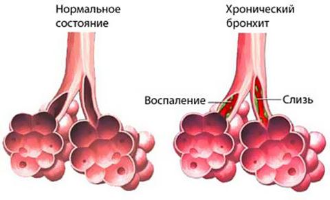 Пример скопления слизи и развития воспаления