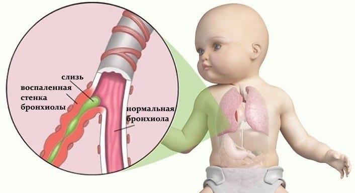 Бронхиолит сопровождается тяжелой дыхательной недостаточностью