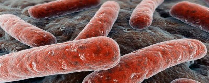 Фото. Палочка Коха хорошо видна на снимке, она очень устойчива к антибиотикам