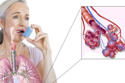 Болезнь имеет инфекционно-аллергическую природу, поражает преимущественно крупные и средние бронхи и может трансформироваться в бронхиальную астму