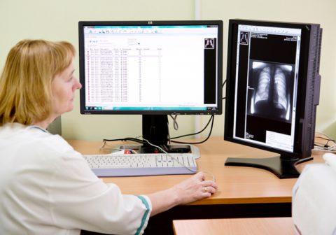 Еще одно название такого метода исследования - рентгенфотография