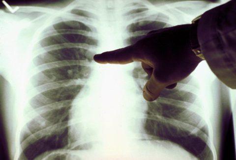Флюорография готова: ежегодно в России (по данным ВОЗ) первично заболевают более 140 тысяч граждан