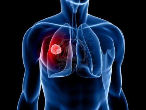 Диагностическая процедура позволяет выявить рак легких на ранней стадии