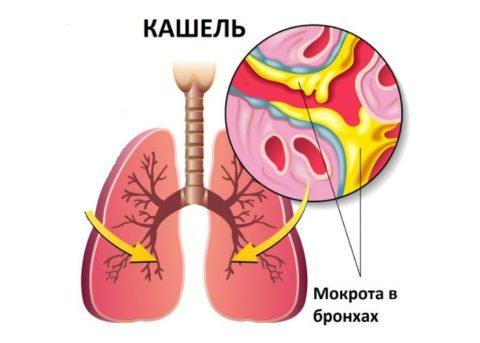 Главный симптом трахеобронхита - периодический или постоянный кашель