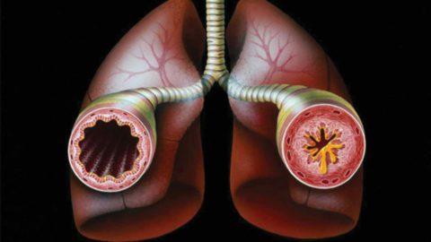 Гнойный бронхит - вероятное осложнение при бактериальном поражении.