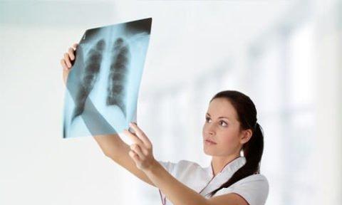 Изучение снимка легких
