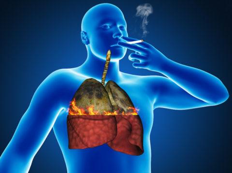 Как действует сигаретный дым на легкие и бронхи человека и почему при туберкулезе курить нельзя.