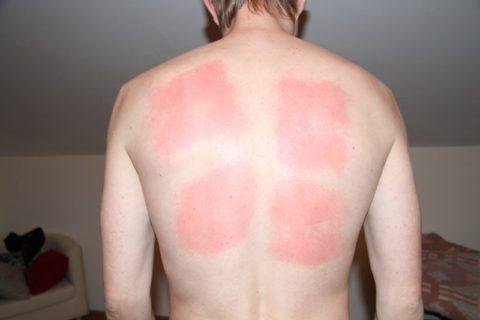 Кожа в области согревания должна быть немного покрасневшей без наличия явных ожогов.