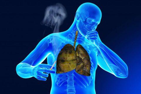 Курение как причина проявления пневмонии, бронхита и туберкулеза.