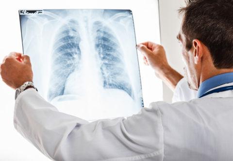 Лечение бронхита следует начинать с посещения пульмонолога.