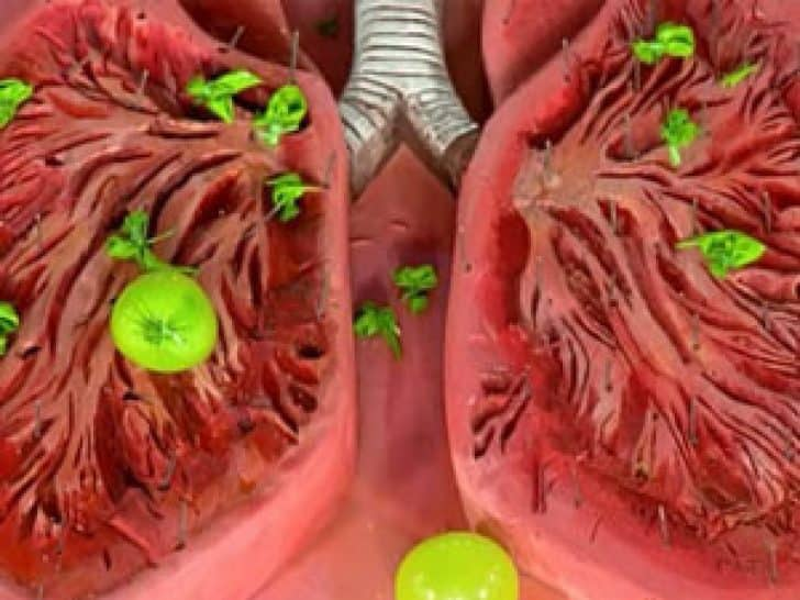 an overview of bronchitis