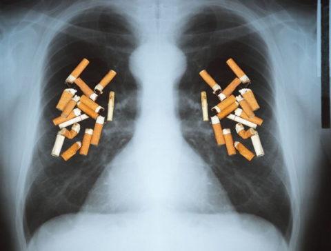 Можно ли курить при туберкулезе легких?