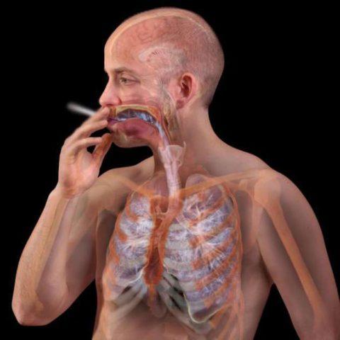 На фото бронхит у курильщика