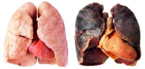 На фото легкие здорового человека и курильщика со стажем.