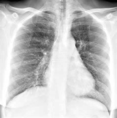 На фото рентген снимок легких, при бронхите он показывает усиление рисунка бронхов.