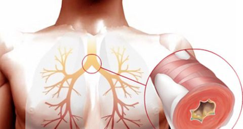 Необструктивный бронхит чаще диагностируют у мужчин.