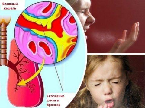 Первым проявлением обструктивного бронхита у детей является сильный малопродуктивный кашель с вязкой мокротой