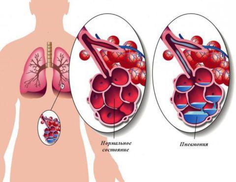 Пневмония – воспаление легочной ткани с поражением альвеол