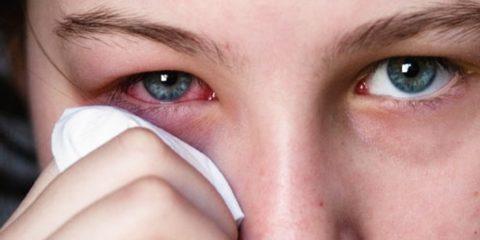 Покраснение и боль в глазах могут быть симптомами туберкулеза