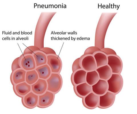 При пневмонии способность легких насыщать кровь кислородом снижается