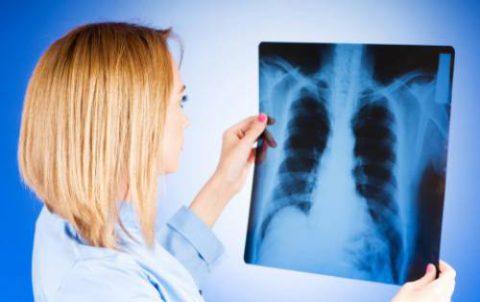 Проявление туберкулеза.