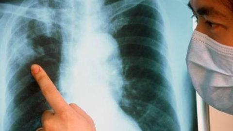 Раннее выявление туберкулеза – одна из задач здравоохранения