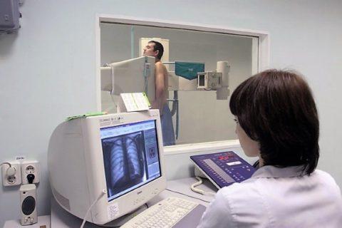Рентгенография (флюорография) органов дыхания