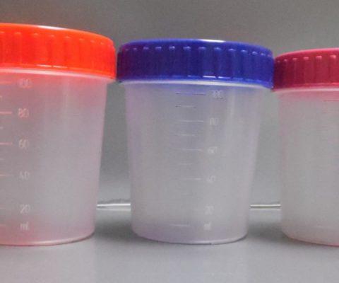 Собирать мокроту следует в специальный контейнер для биоматериалов.