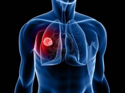Туберкулез – распространенное заболевание легких.