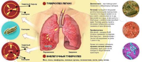 Туберкулёз поражает весь организм, а не только лёгкие