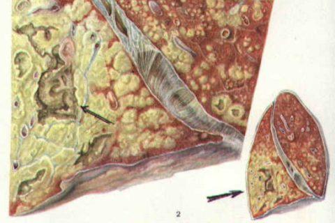 Творожистый некроз (на фото) сопровождается распространенной деструкцией
