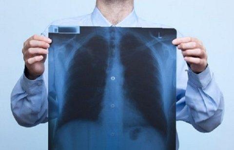 Выявление пневмонии при тяжелом бронхите на рентгенограмме