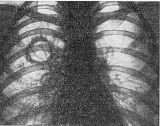 Застарелая каверна, стенки которой замещены соединительной тканью