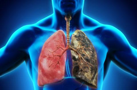 Здоровые легкие и бронхи изменяются под воздействием табачного дыма.