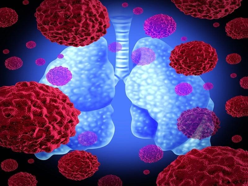 Бактерии, провоцирующие воспаление