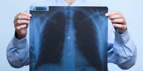 Рентгенография позволяет исключить вероятность проявления пневмонии.
