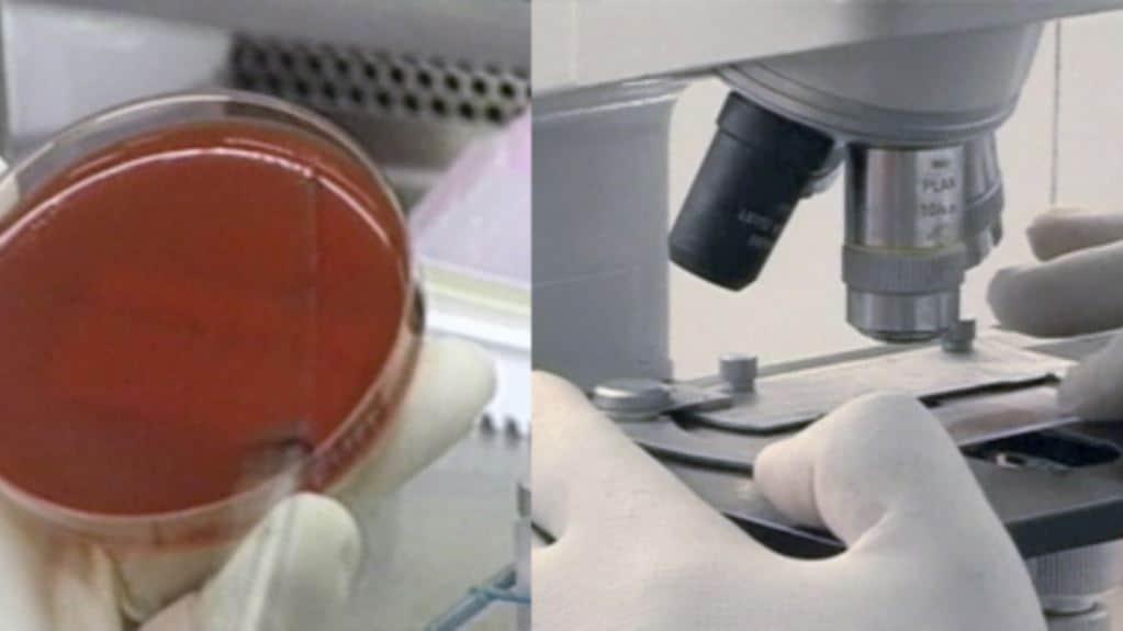 Посев мокроты и определение антибиотикорезистентности.