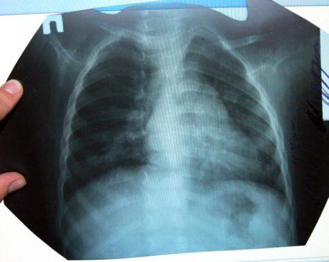 Для точного определения диагноза снимки следует выполнять в разных проекциях.
