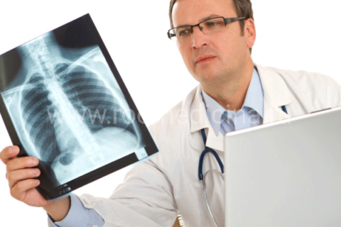 Исключить вероятность развития пневмонии поможет рентгенография.