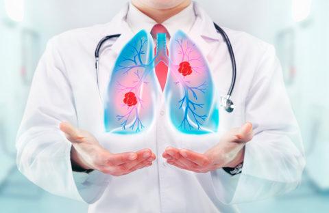 Какие методы используют для лечения пневмонии?