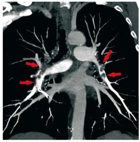 КТ ангиография – золотой стандарт для диагностики ТЭЛА.