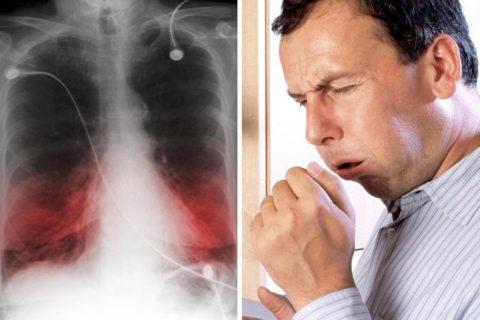 Курение при пневмонии препятствует отхождению мокроты