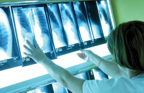 Лечить патологию нужно незамедлительно.