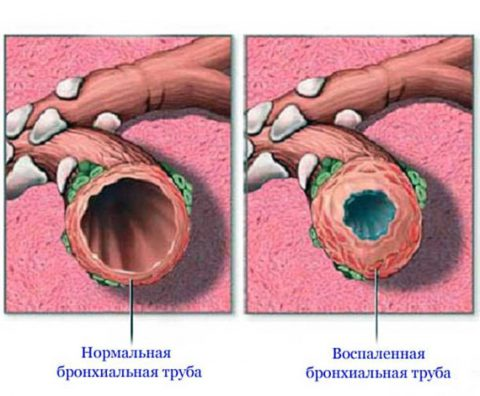 На фото бронха здорового человека и бронха с воспалительным процессом при остром бронхите.