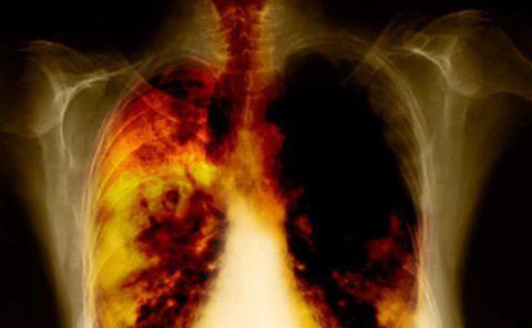 На фото поражение дыхательной системы, в следствие никотиновой зависимости.