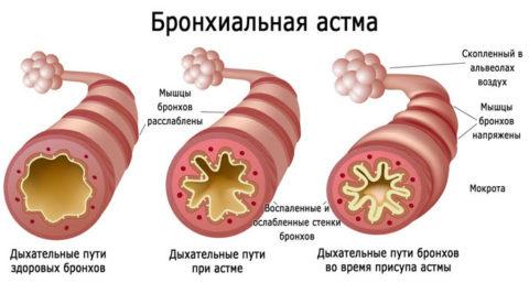Обструктивный бронхит опасен развитием бронхиальной астмы.