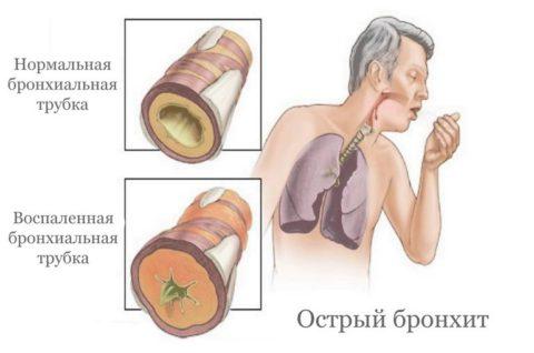 Острое заболевание верхних отделов дыхательной системы - бронхит