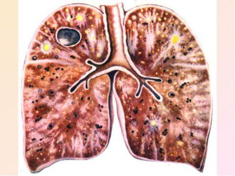 Палочка Коха – главный возбудитель заболевания